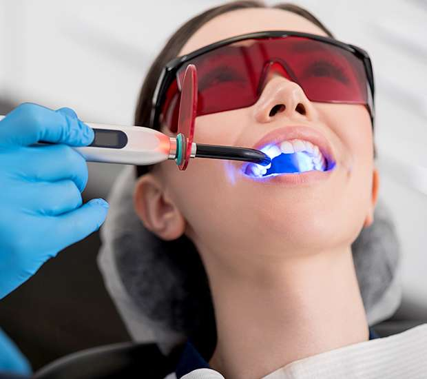 Fresno Professional Teeth Whitening